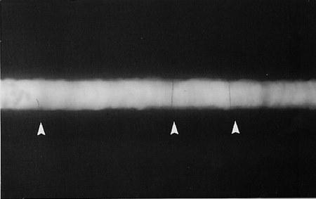 Transverse crack در تفسیر فیلم رادیوگرافی