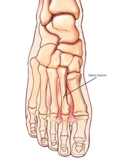 شکستگی تنشی استخوان