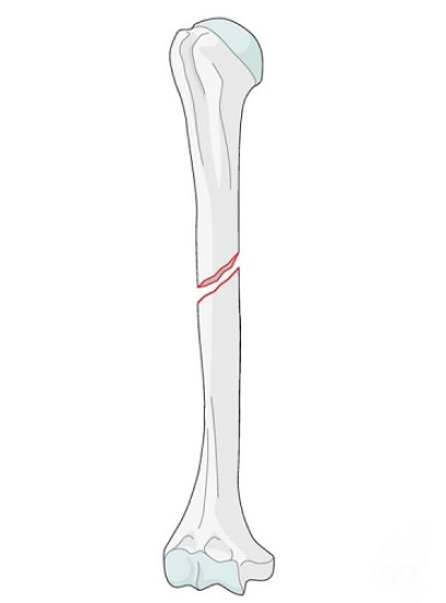 fracture مورب