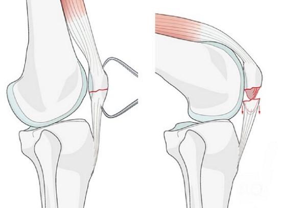 fracture کنده شده